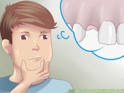 Mơ thấy gãy răng – Đánh lô đề con gì chuẩn xác khi mơ thấy gãy răng